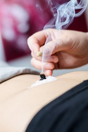 Heilpraktikerin Bettina Will aus Frankfurt wendet Moxibustion an